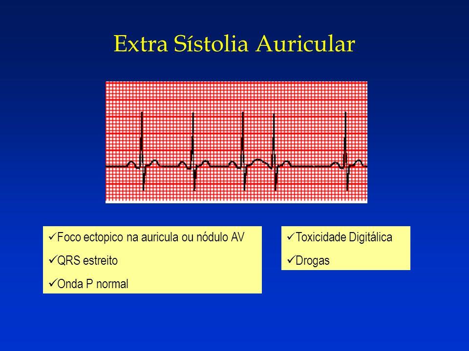 Extra Sístolia Auricular