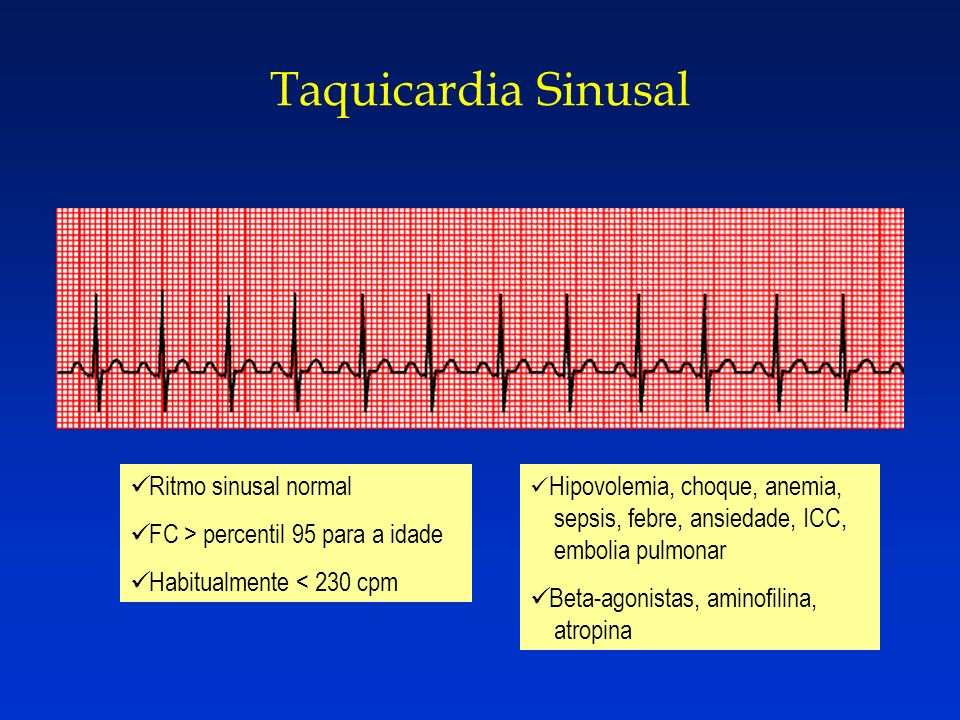 Taquicardia Sinusal Ritmo sinusal normal