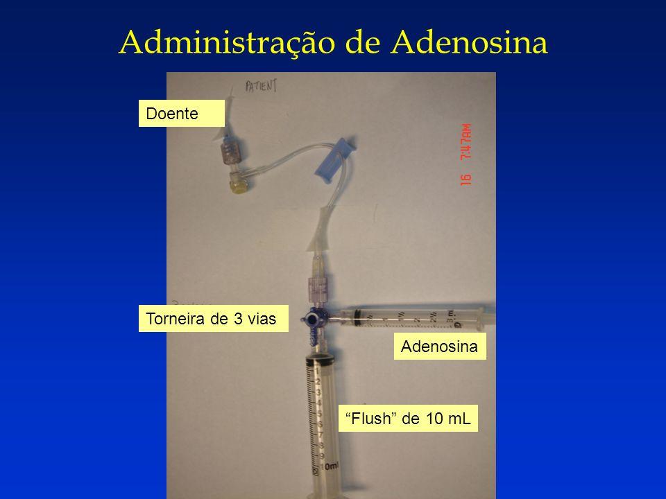 Administração de Adenosina