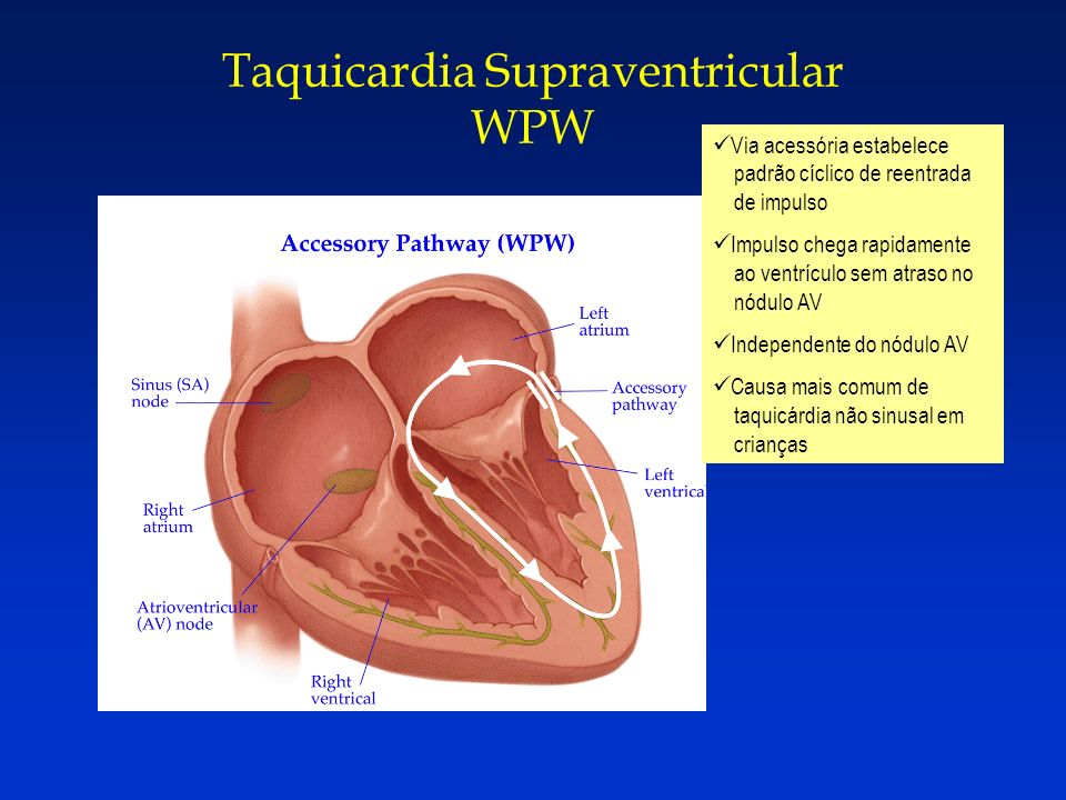 Taquicardia Supraventricular WPW