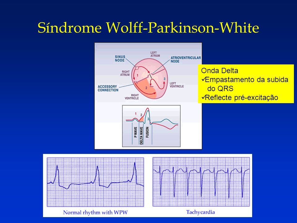 Síndrome Wolff-Parkinson-White