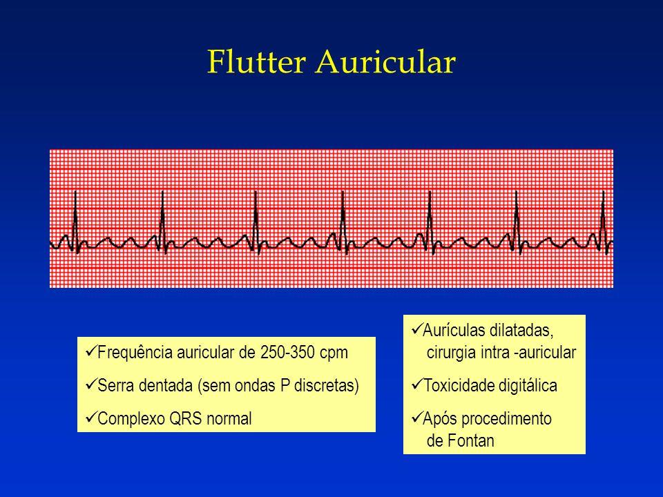 Flutter Auricular Aurículas dilatadas, cirurgia intra -auricular
