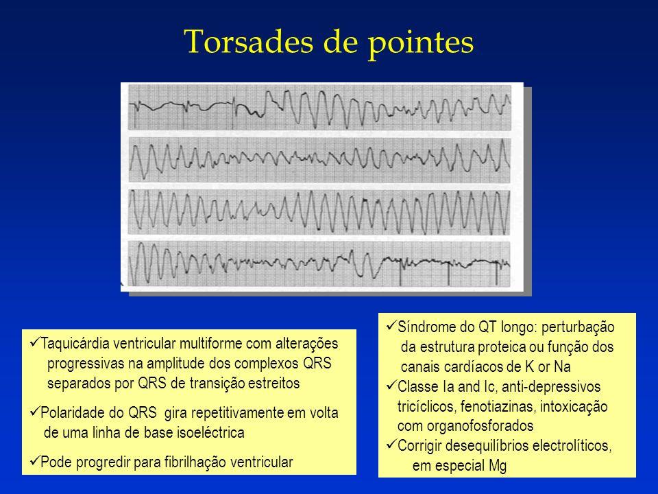 Torsades de pointes Síndrome do QT longo: perturbação da estrutura proteica ou função dos canais cardíacos de K or Na.