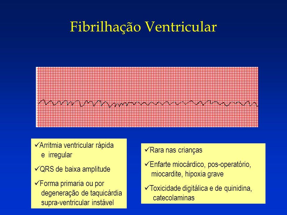 Fibrilhação Ventricular