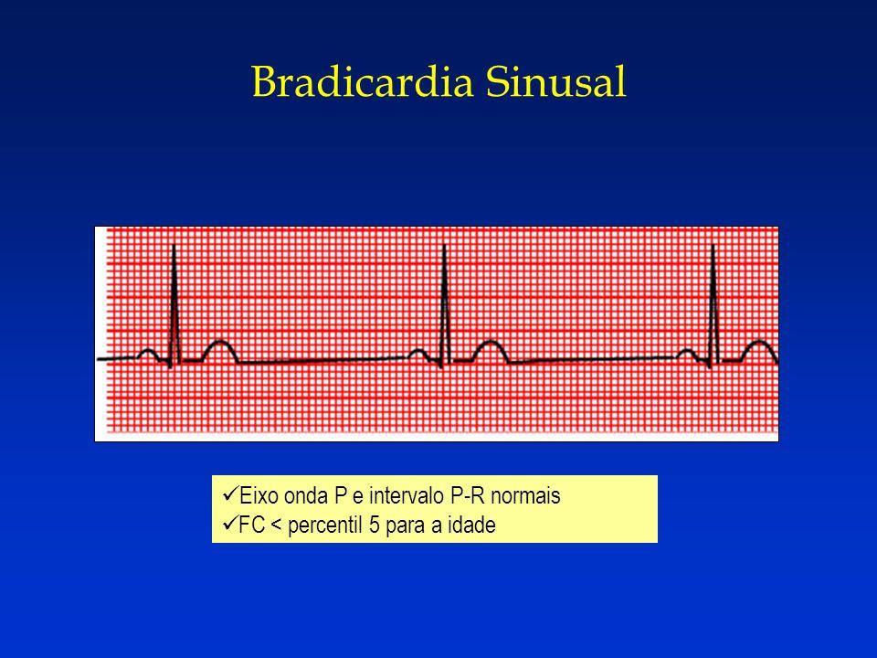 Bradicardia Sinusal Eixo onda P e intervalo P-R normais