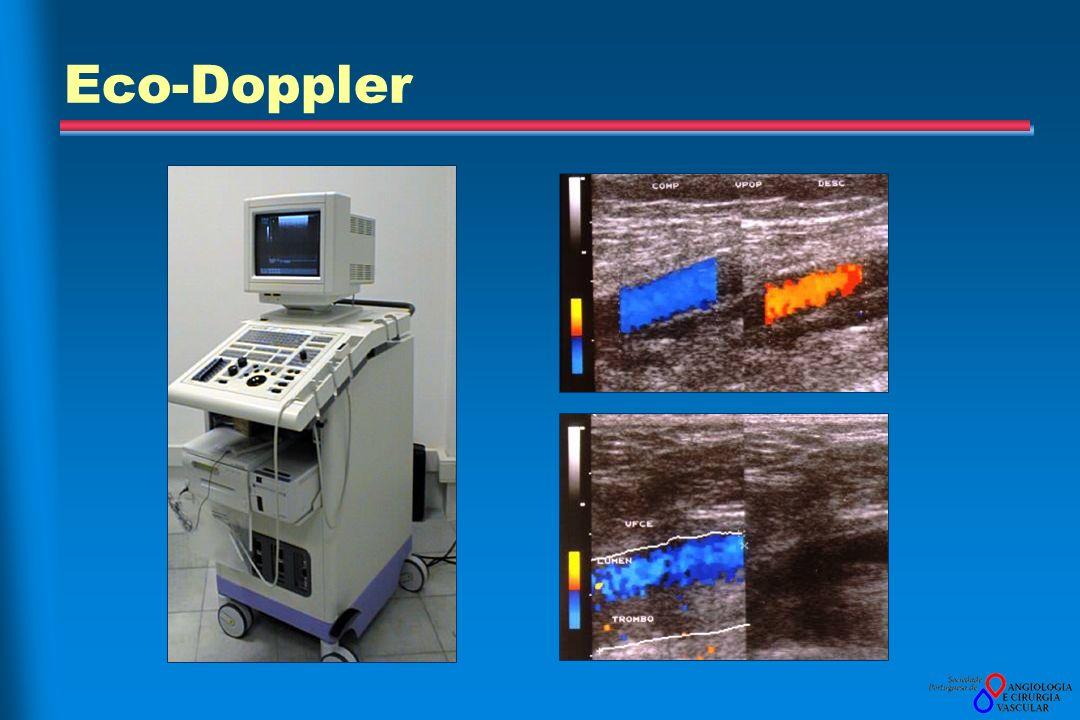 Eco-Doppler