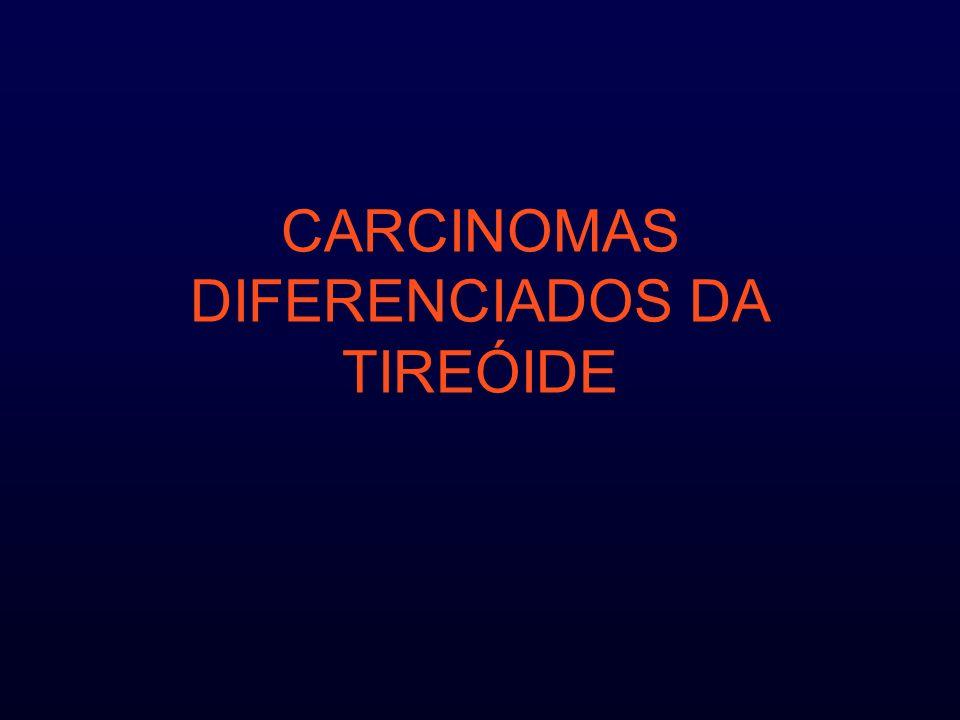 CARCINOMAS DIFERENCIADOS DA TIREÓIDE