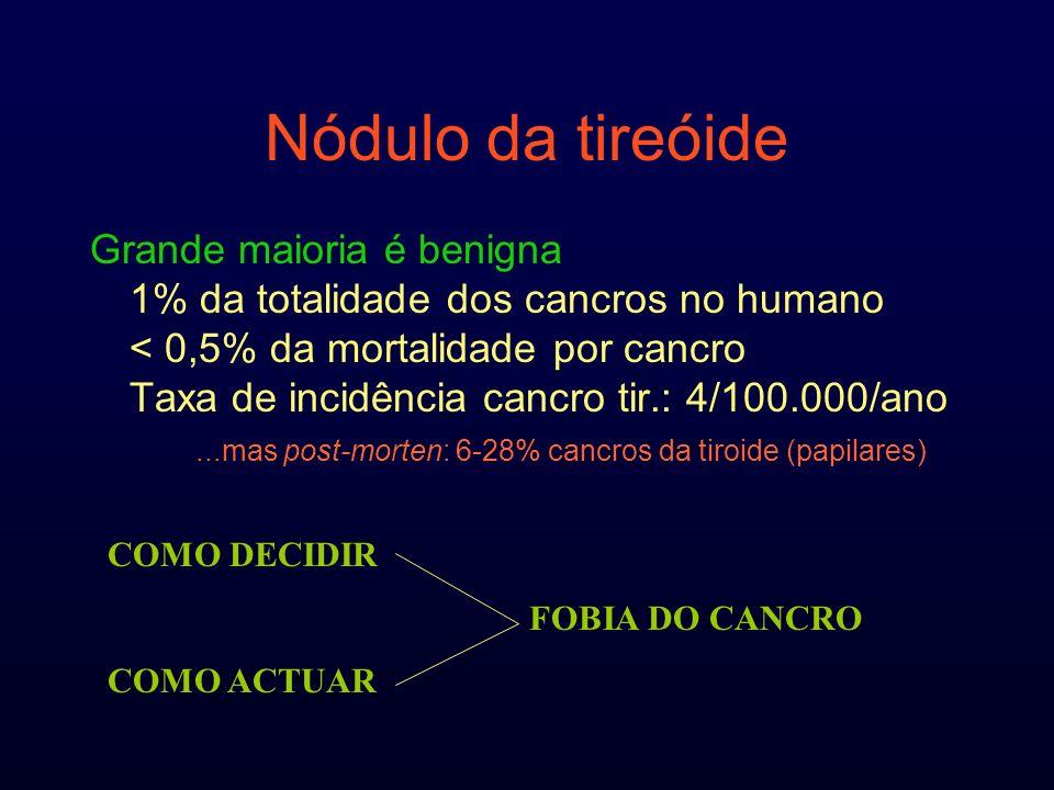 Nódulo da tireóide Grande maioria é benigna