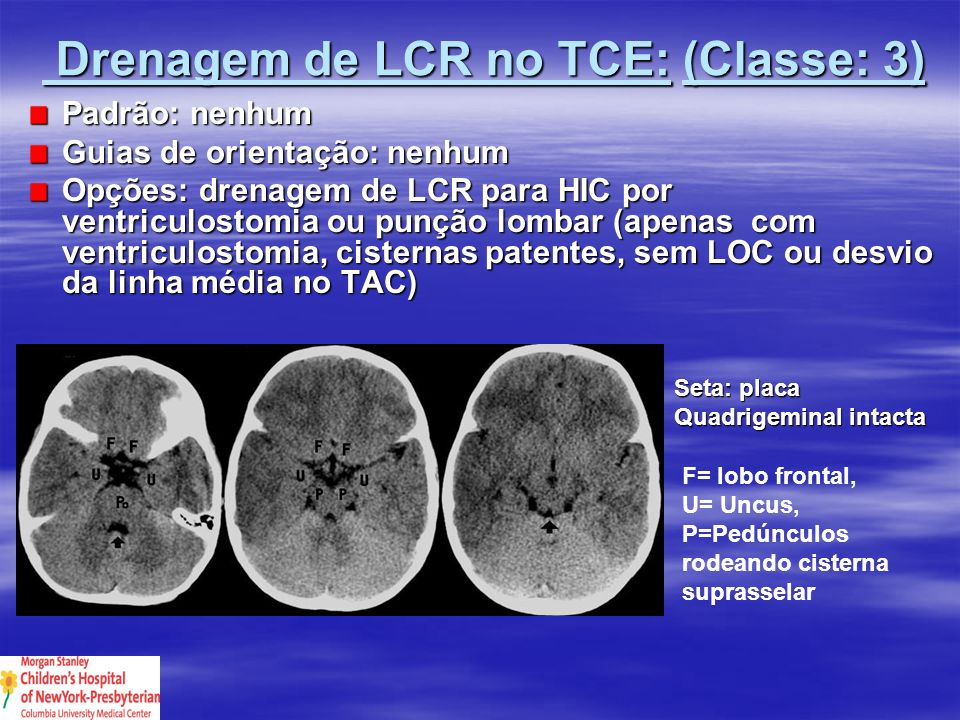 Drenagem de LCR no TCE: (Classe: 3)