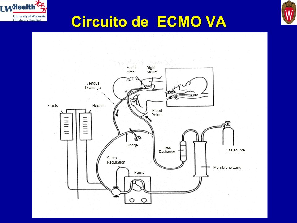 Circuito de ECMO VA Aortic Arch Right Atrium Venous Drainage Fluids