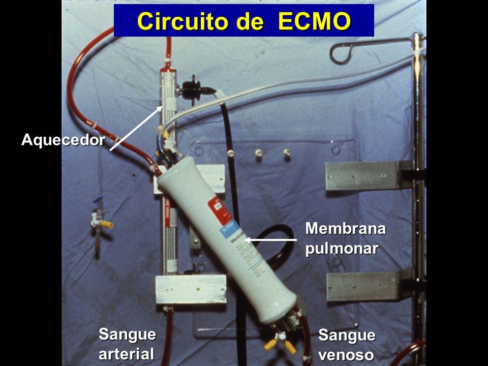 Circuito de ECMO Aquecedor Membrana pulmonar Sanguearterial