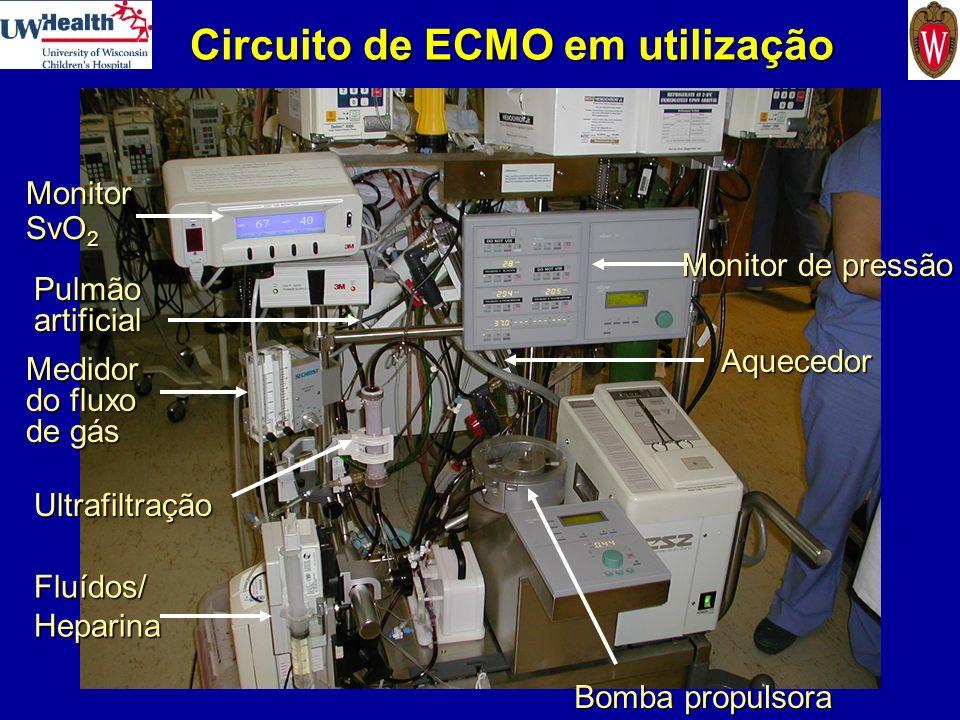 Circuito de ECMO em utilização