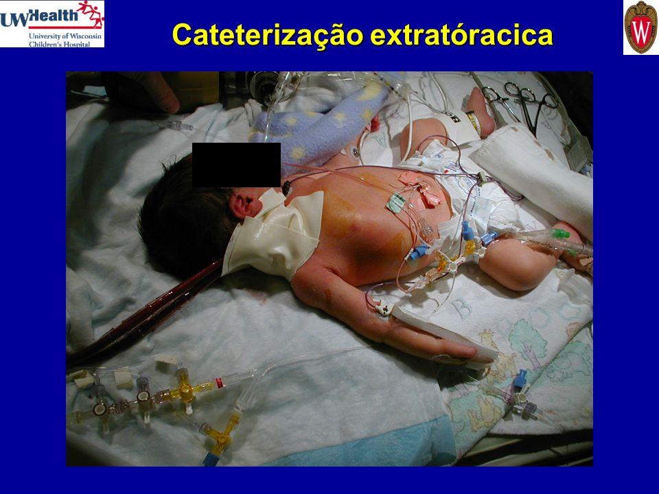 Cateterização extratóracica
