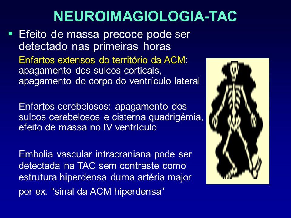 NEUROIMAGIOLOGIA-TAC