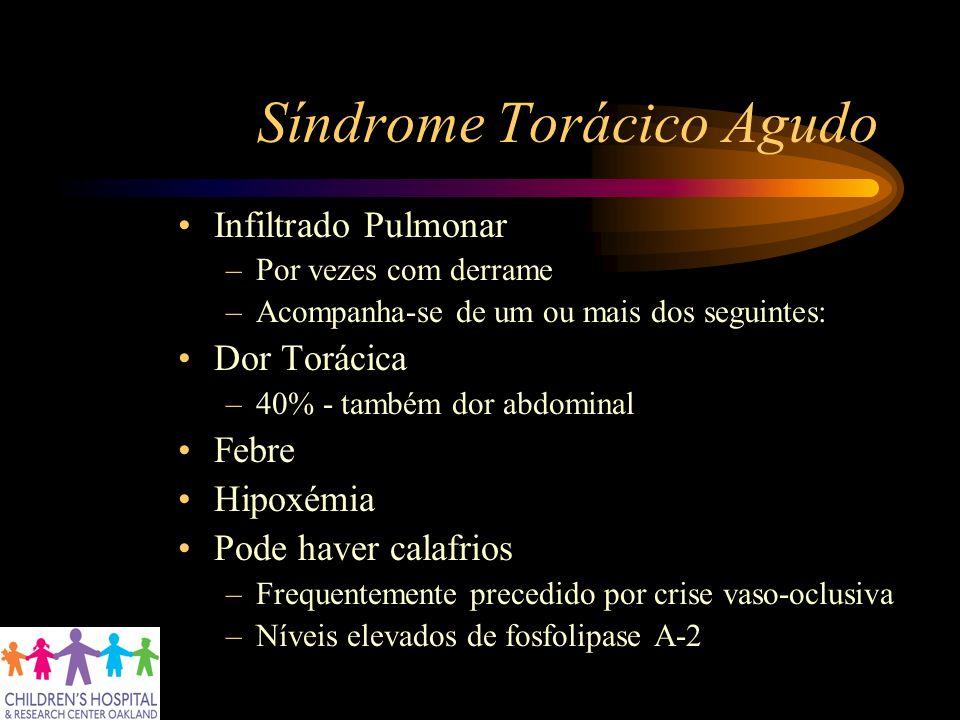 Síndrome Torácico Agudo