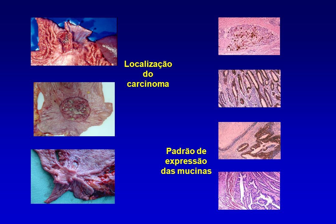 Localização do carcinoma Padrão de expressão das mucinas