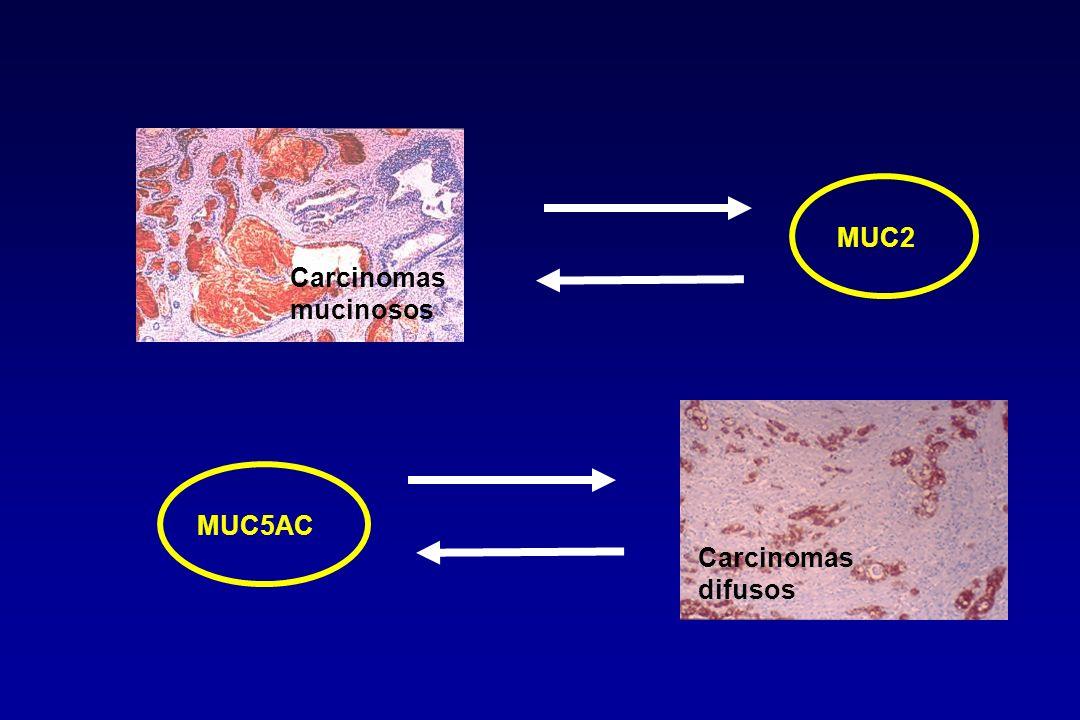 MUC2 Carcinomas mucinosos MUC5AC Carcinomas difusos