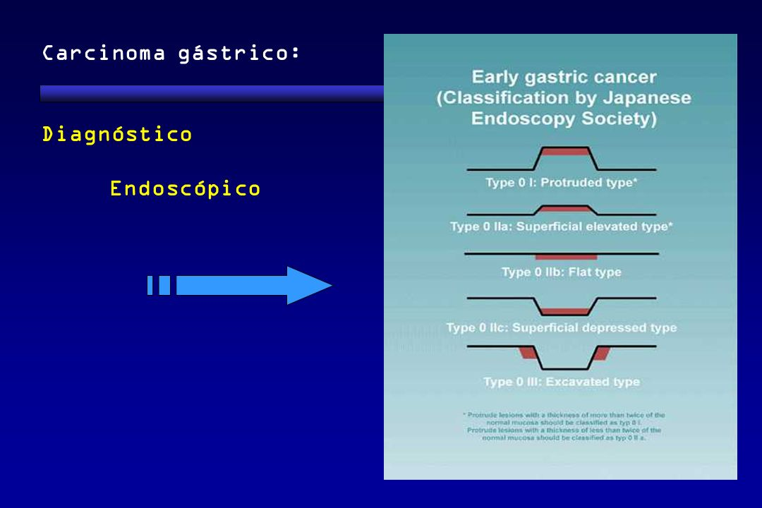 Carcinoma gástrico: Diagnóstico Endoscópico