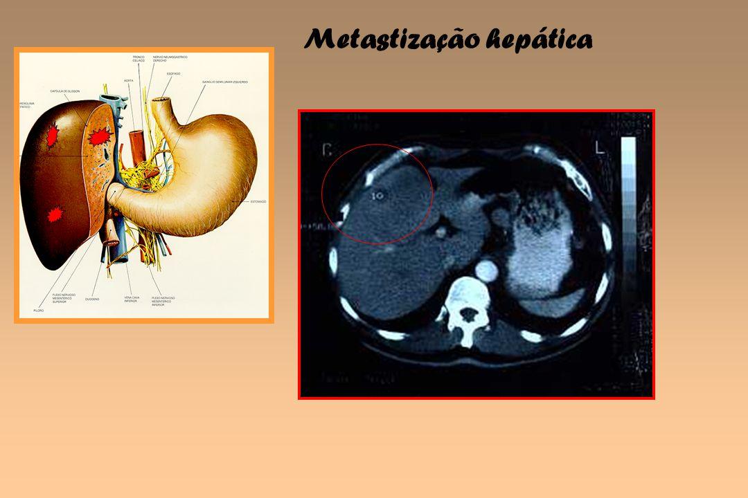 Metastização hepática