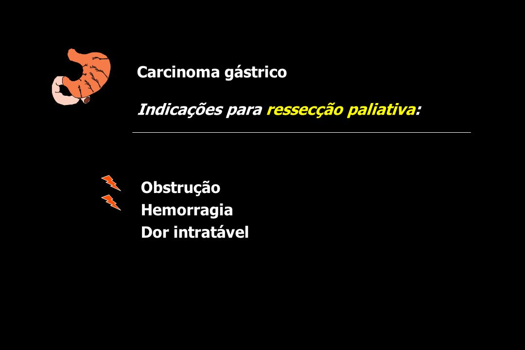 Carcinoma gástrico Indicações para ressecção paliativa: