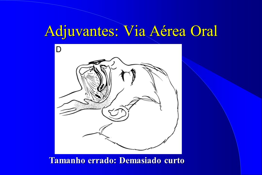 Adjuvantes: Via Aérea Oral