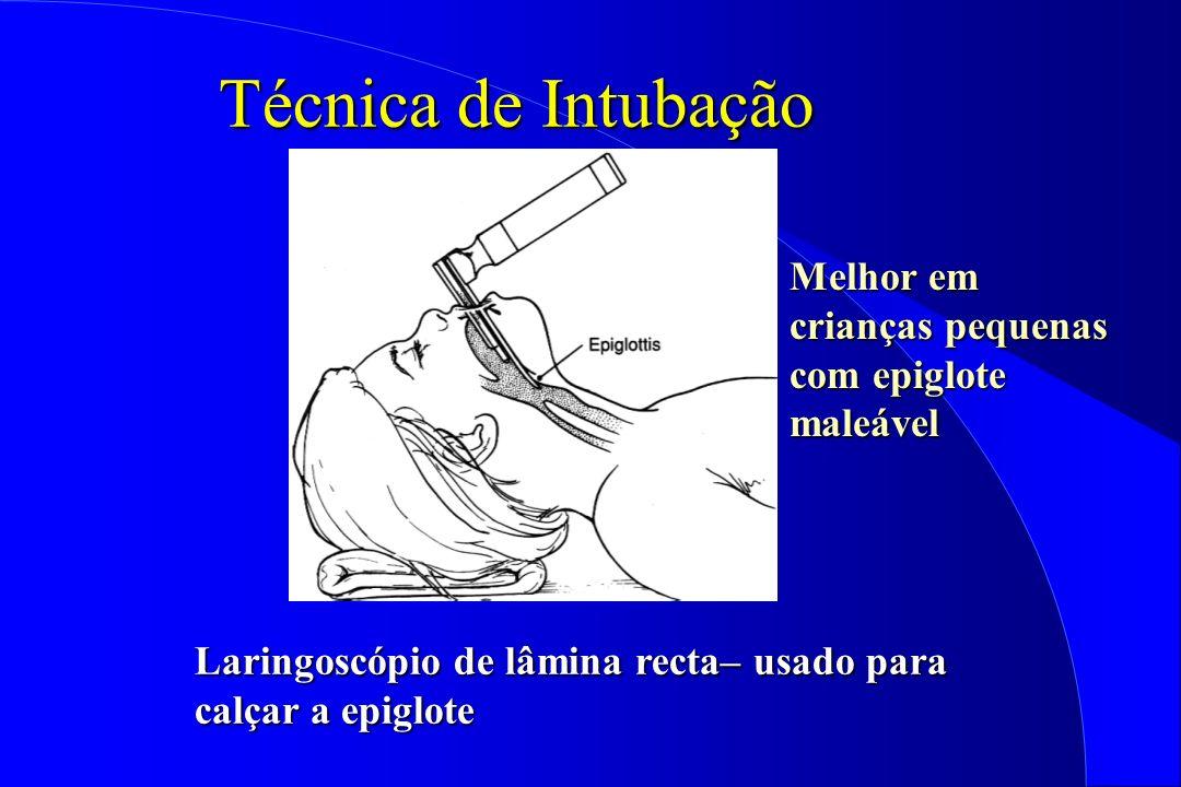 Técnica de Intubação Melhor em crianças pequenas com epiglote maleável