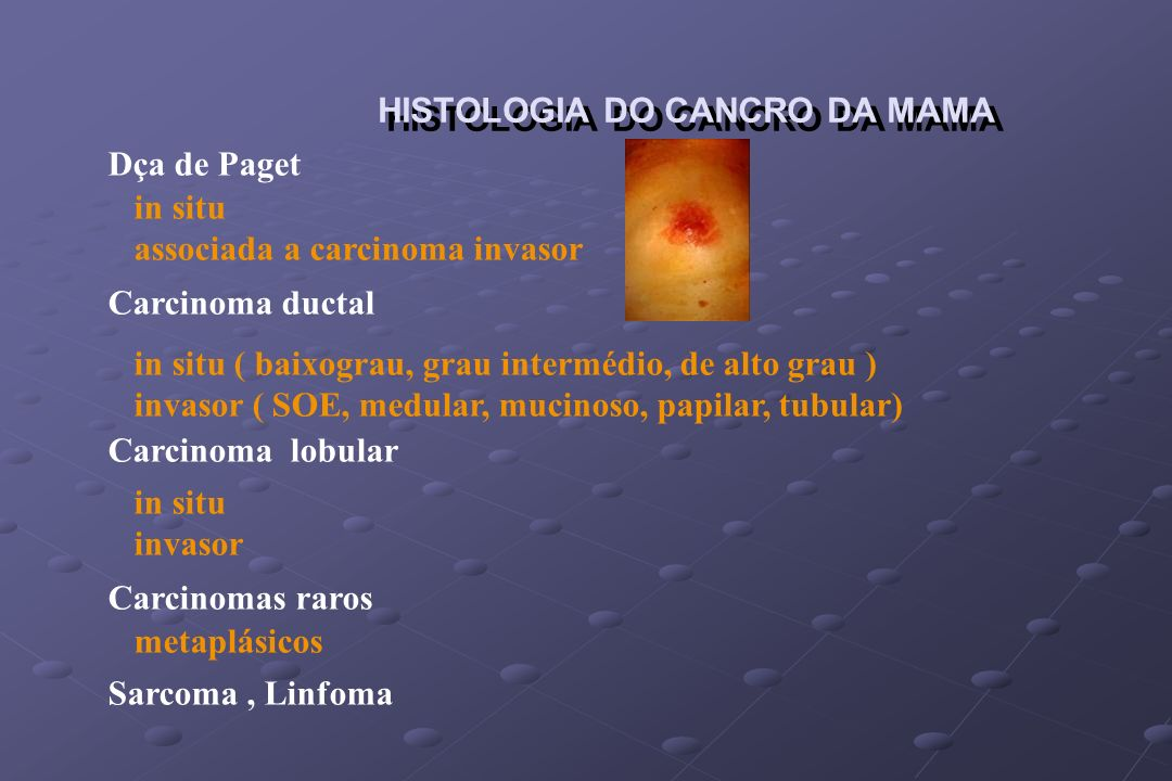HISTOLOGIA DO CANCRO DA MAMA
