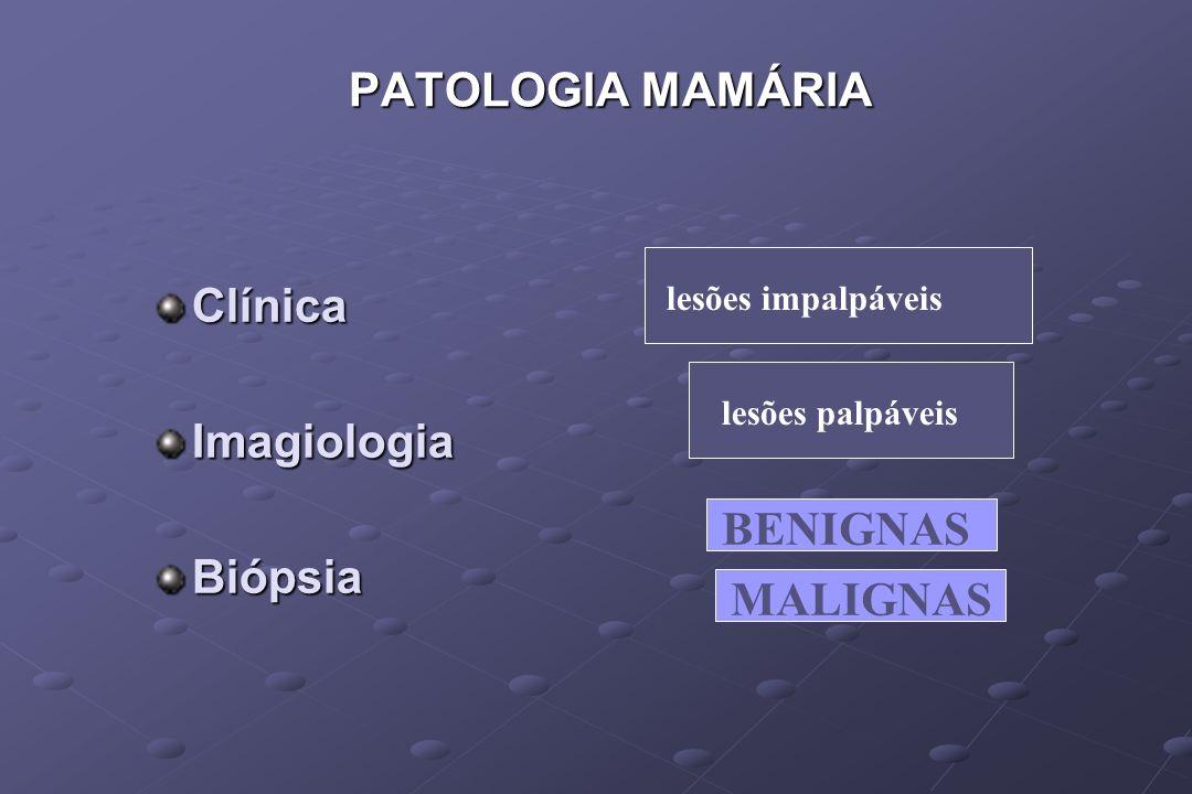 PATOLOGIA MAMÁRIA Clínica Imagiologia Biópsia BENIGNAS MALIGNAS