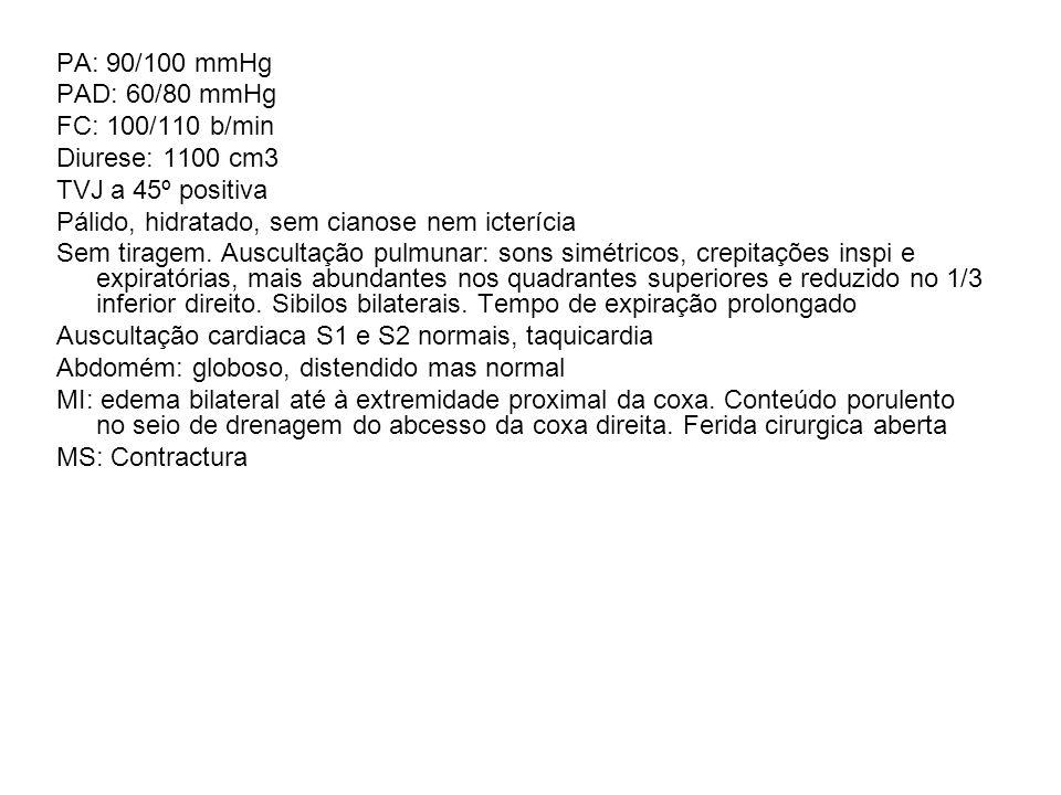 PA: 90/100 mmHgPAD: 60/80 mmHg. FC: 100/110 b/min. Diurese: 1100 cm3. TVJ a 45º positiva. Pálido, hidratado, sem cianose nem icterícia.