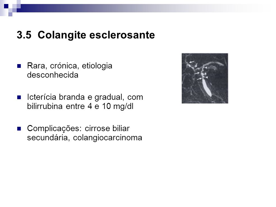 3.5 Colangite esclerosante