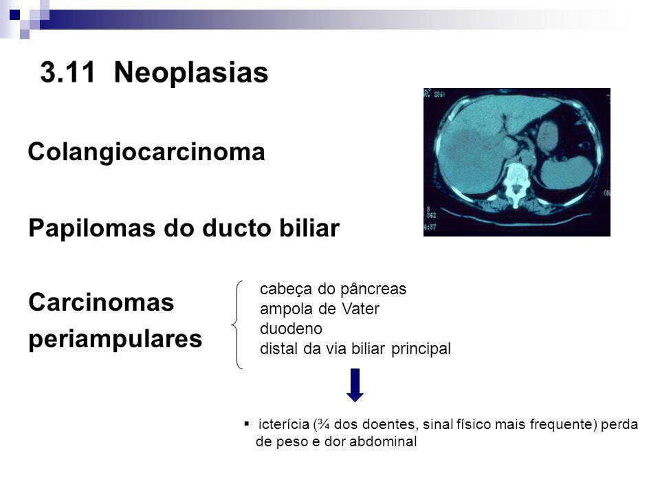 Colangiocarcinoma 3.11 Neoplasias Papilomas do ducto biliar Carcinomas
