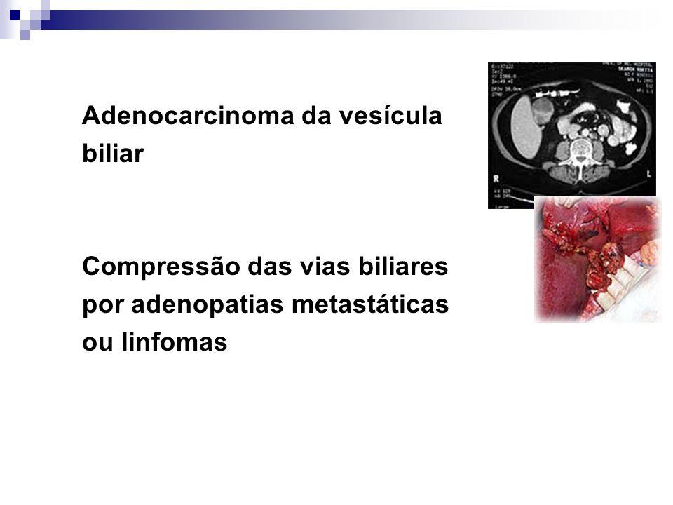Adenocarcinoma da vesícula
