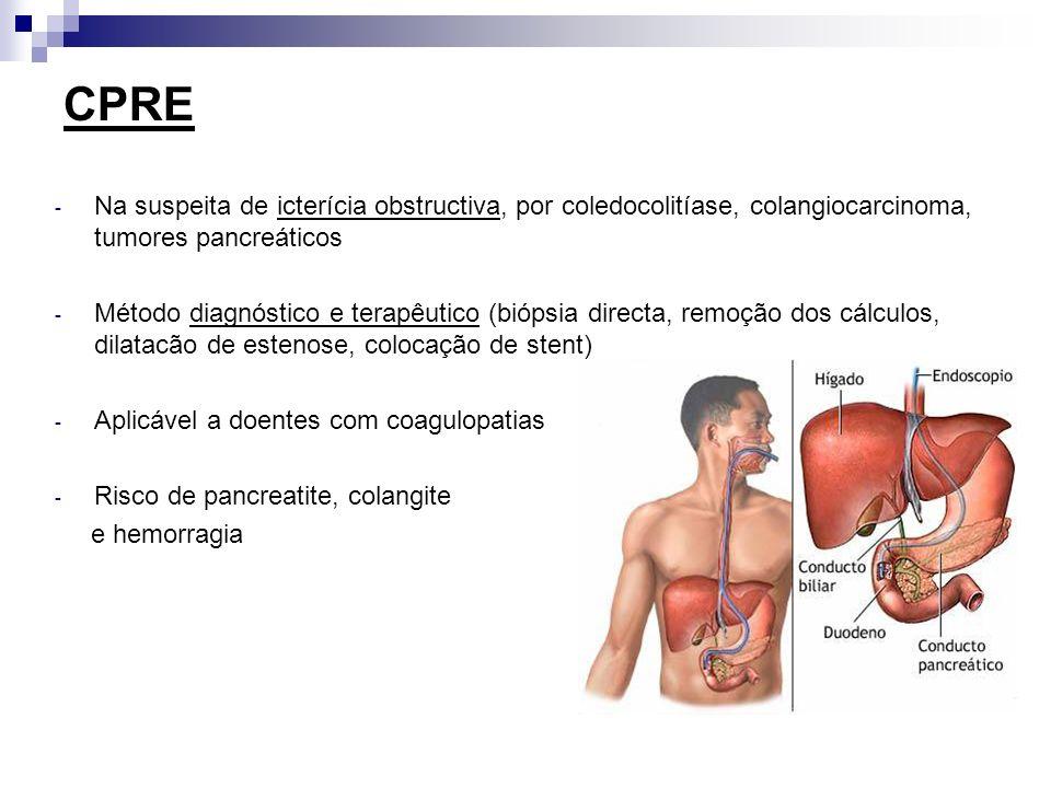 CPRE Na suspeita de icterícia obstructiva, por coledocolitíase, colangiocarcinoma, tumores pancreáticos.