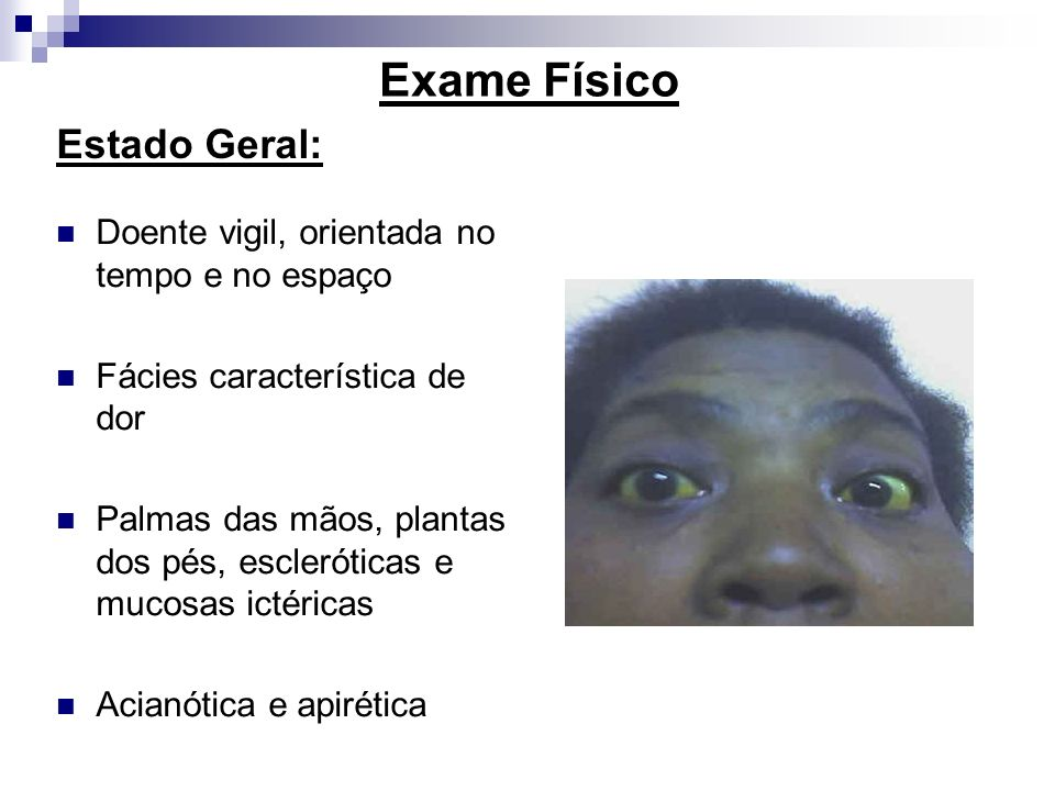 Exame Físico Estado Geral: