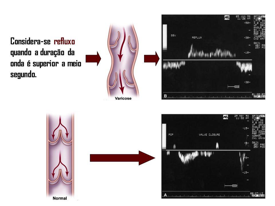 Considera-se refluxo quando a duração da onda é superior a meio segundo.