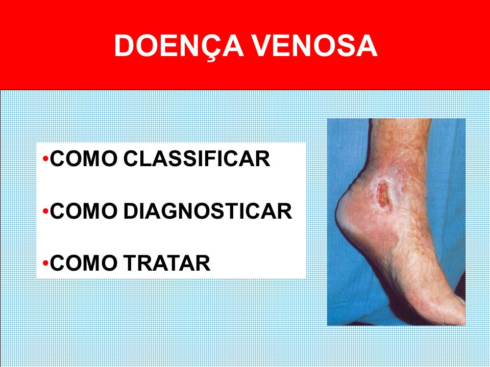 DOENÇA VENOSA COMO CLASSIFICAR COMO DIAGNOSTICAR COMO TRATAR