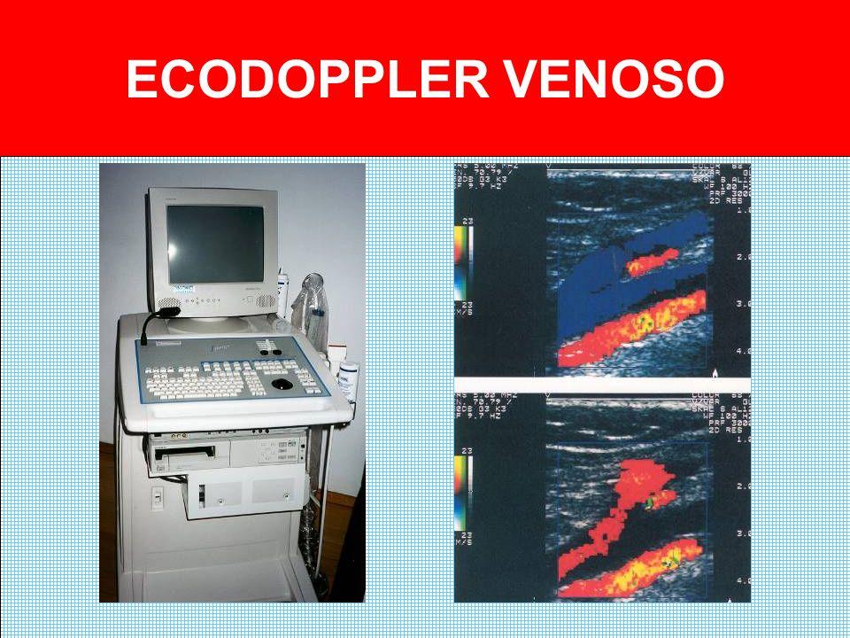 ECODOPPLER VENOSO