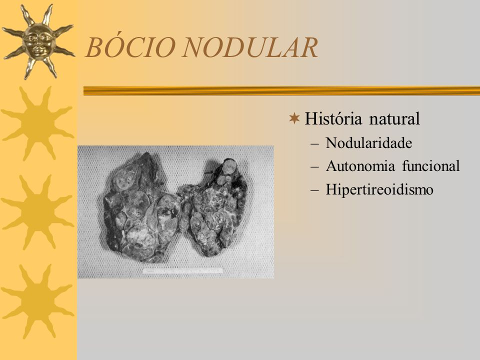 BÓCIO NODULAR História natural Nodularidade Autonomia funcional