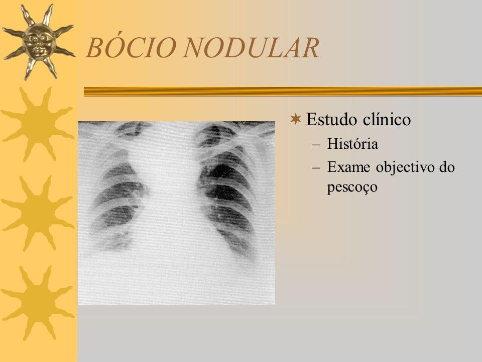 BÓCIO NODULAR Estudo clínico História Exame objectivo do pescoço