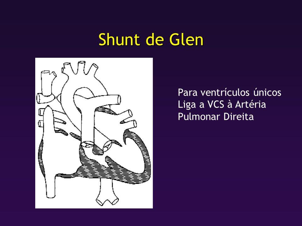 Shunt de Glen Para ventrículos únicos