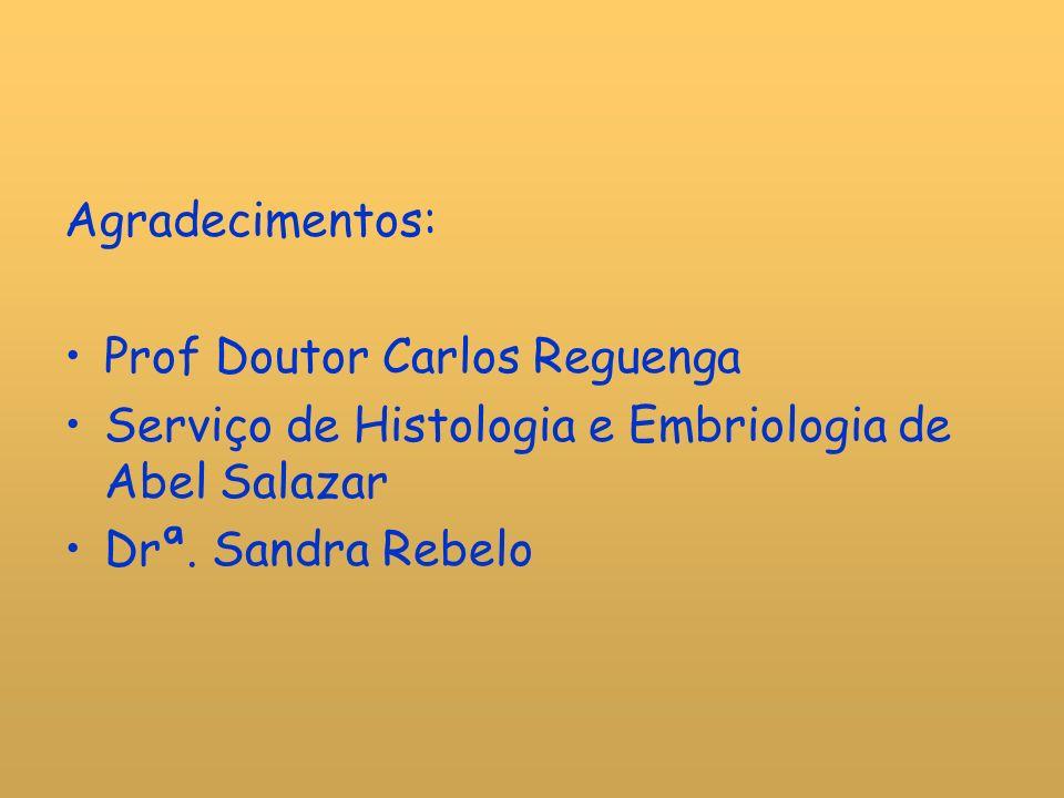 Agradecimentos: Prof Doutor Carlos Reguenga. Serviço de Histologia e Embriologia de Abel Salazar.