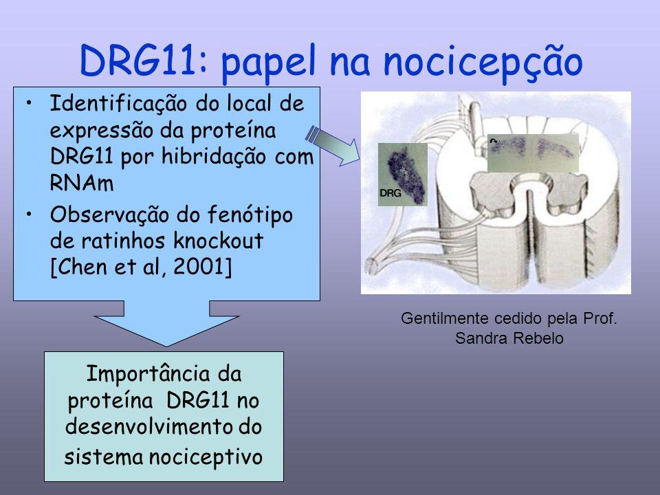 DRG11: papel na nocicepção