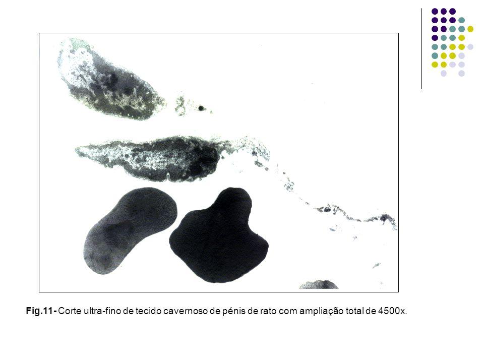 Fig.11- Corte ultra-fino de tecido cavernoso de pénis de rato com ampliação total de 4500x.