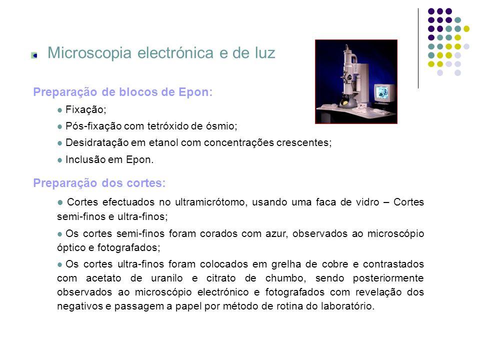 Microscopia electrónica e de luz