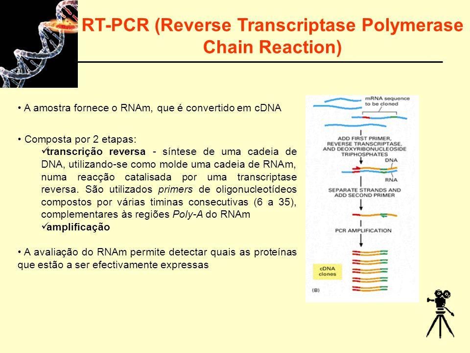 RT-PCR (Reverse Transcriptase Polymerase Chain Reaction)