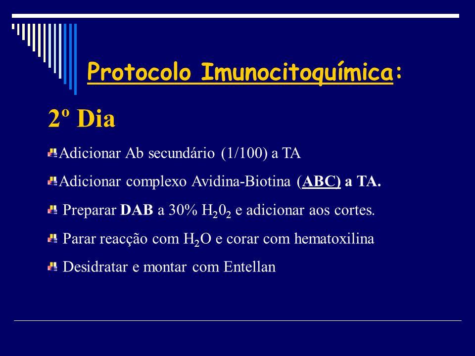 Protocolo Imunocitoquímica:
