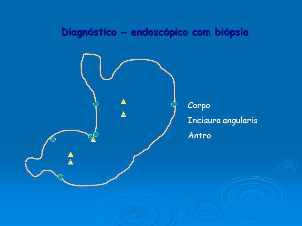 Diagnóstico – endoscópico com biópsia