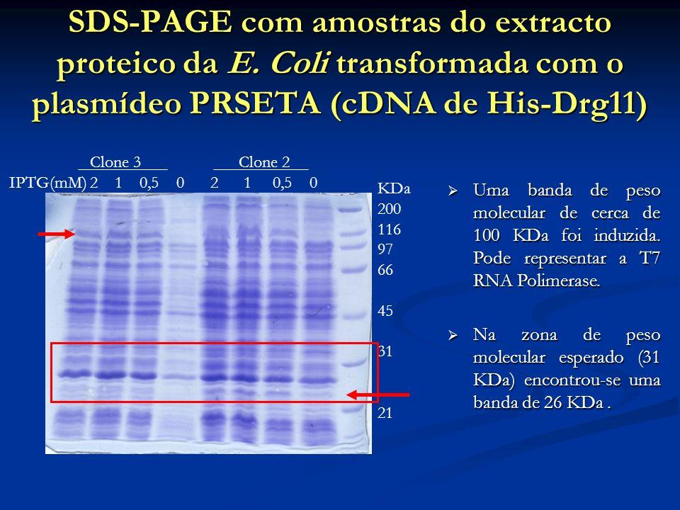 SDS-PAGE com amostras do extracto proteico da E