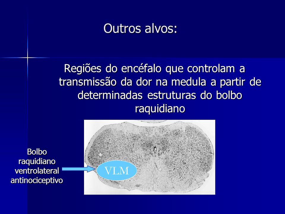 Bolbo raquidiano ventrolateral antinociceptivo
