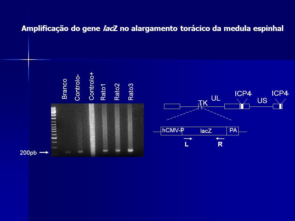 Amplificação do gene lacZ no alargamento torácico da medula espinhal